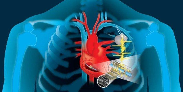 فراوری ضربان ساز قلبی که با خود قلب شارژ می گردد