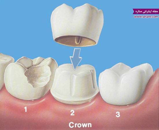 روکش دندان و هر آنچه که درباره آن باید بدانید