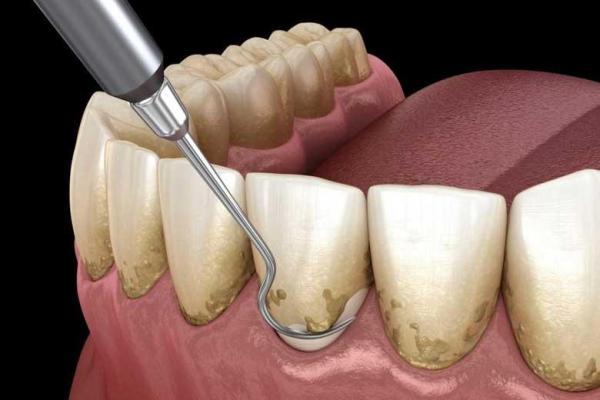 چرا جرمگیری دندان ها مفید است؟