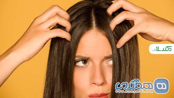 راهکارهای ساده برای کاهش چربی در موهای چرب